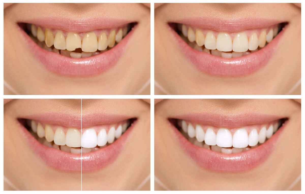 Dental Bonding Westwood